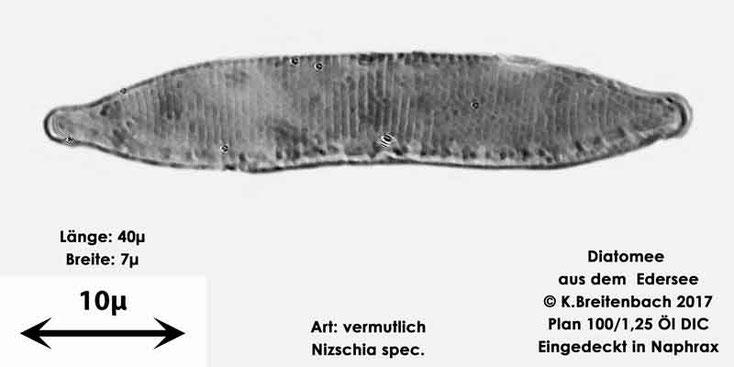 Bild 15 Diatomeen aus dem Edersee, Art: vermutlich Nitzschia spec.