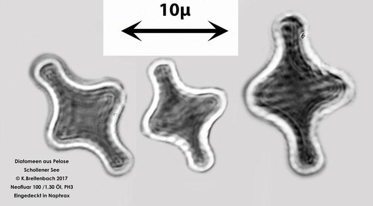 Diatomee aus der Pelose aus dem Schollener See, Art unbekannt