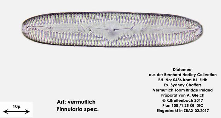 Bild 14 Diatomee aus Toomebridge Irland, Süßwasser Art: vermutlich Pinnularia spec.