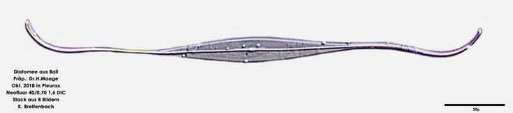 Diatomee aus Bali; Art: cf Psammosynedra closterioides (Grunow) F.E.Round 1993
