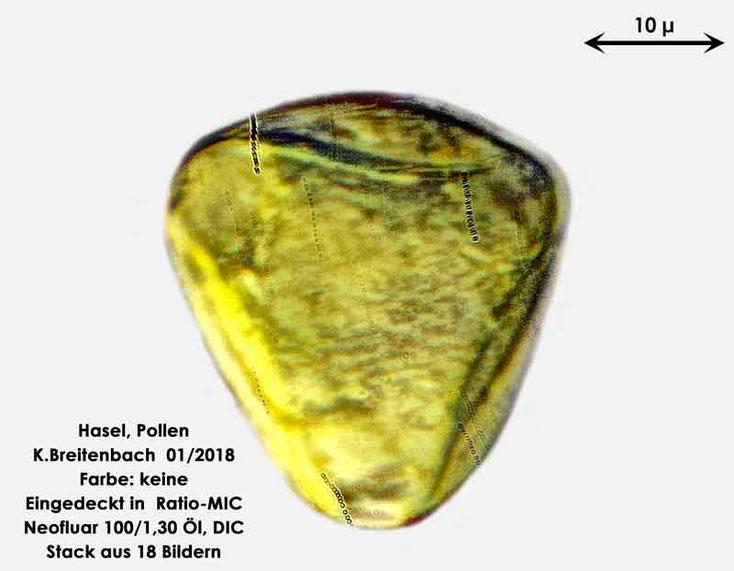 Bild 4 Hasel-Pollen ungefärbt in Ratio-MIC