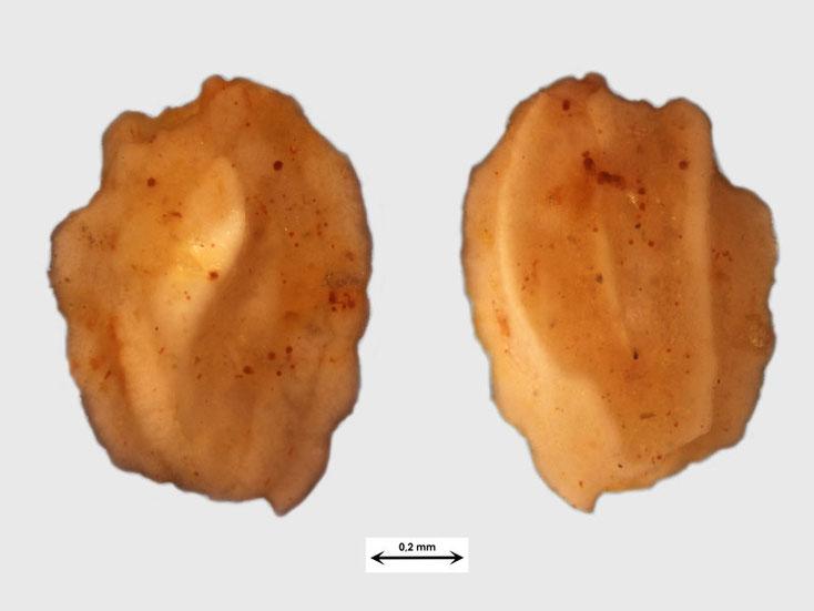 Vermutlich Foraminifere aus Waldlaubersheim vermutlich Quinqueloculina spec