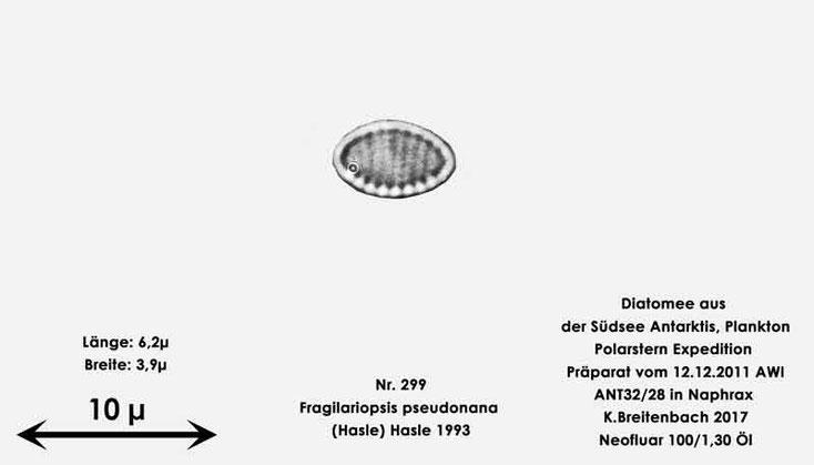 Bild 14 Diatomee aus dem anarktischen Ozean Präparat: ANT32/28; Art: Fragilariopsis pseudonana (Hasle) Hasle 1993