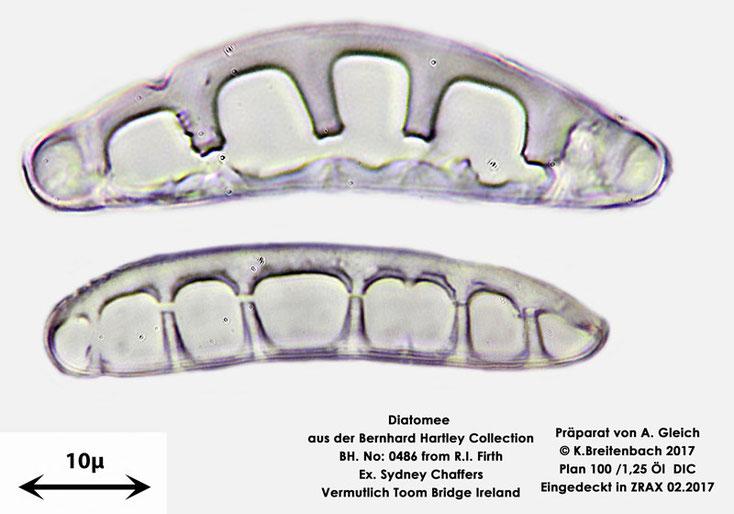 Bild 20 Diatomee aus Toomebridge Irland, Süßwasser Art: unbekannt