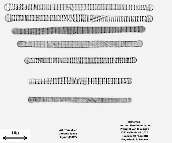 Bild 16 Diatomee aus dem Meerfelder Maar in der Eifel, Art: vermutlich Diatoma tenue Agardh (1812)