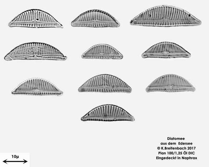 Bild 8 Diatomeen aus dem Edersee, verschiedenen Aufnahmen, Art: vermutlich Encyonema spec.