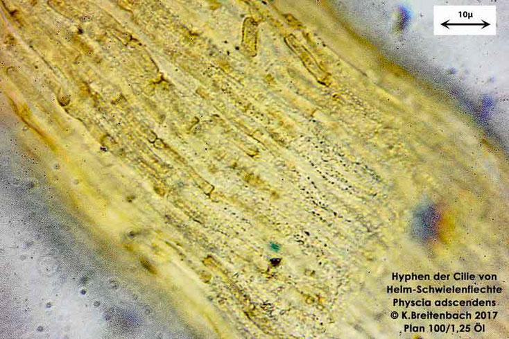 Bild 7 Flechte von Baumrinde, von einer Platane Hyphen einer Cilie der Art: vermutlich Physcia adscendens (Helm-Schwielenflechte)
