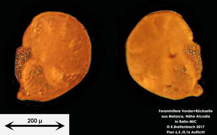 Bild 9 Foraminiferen aus Mallorca; Gattung: Ammonia spec.