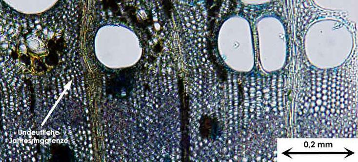 Bild 8 Querschnitt von Ast der Amerikanischen Gleditschie  (Gleditsia triacanthos) gefärbt mit Etzold blau, eingebettet in Euparal
