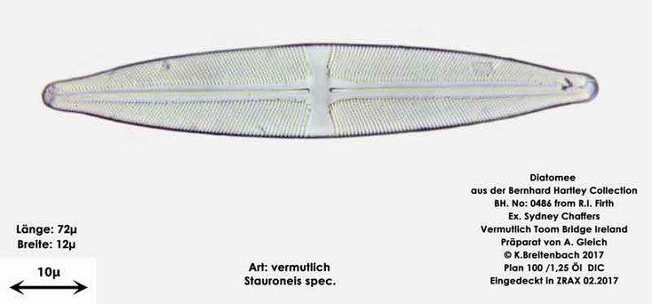 Bild 4 Diatomee aus Toomebridge Irland, Süßwasser Art: vermutlich Stauroneis spec.