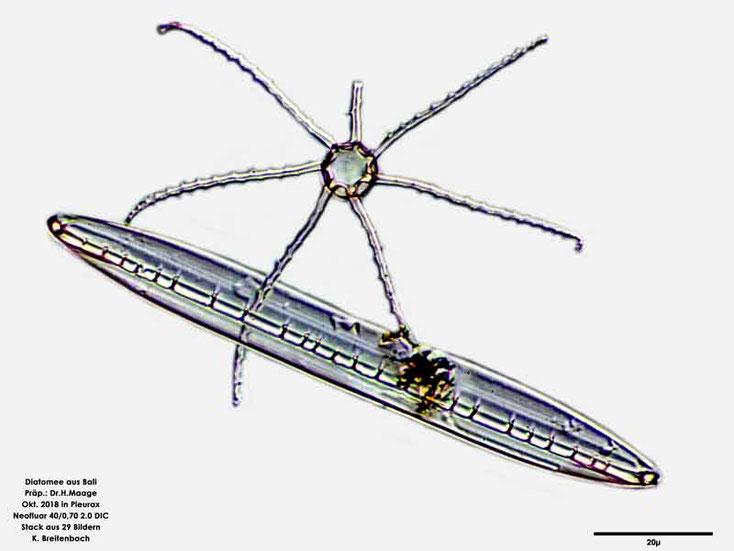 Diatomee aus Bali; Gattung: cf Corethron sp auf Nitzschia sp