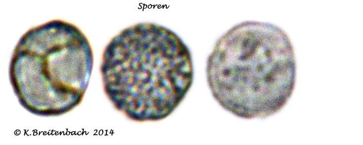 Bild 9 Semmelstoppelpilz (Hydnum repandum) Einzelsporen