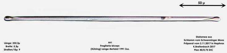 Bild 6 Diatomeen aus dem Schwenninger-Moos Art: Fragilaria biceps (Kützing) Lange-Bertalot 1991