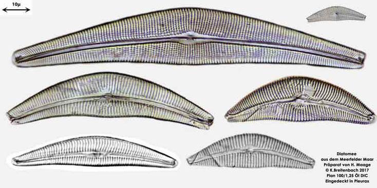 Bild 4b Diatomee aus dem Meerfelder Maar in der Eifel, Art: vermutlich Cymbella spec.