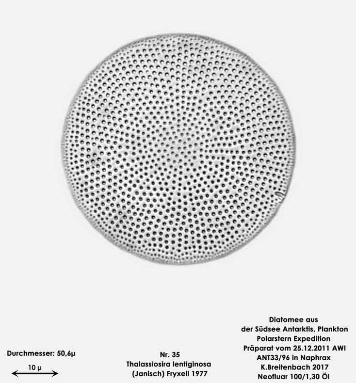 Bild 26 Diatomee aus dem anarktischen Ozean Präparat: ANT33/96; Art: Thalassiosira lentiginosa (Janisch) Fryxell 1977