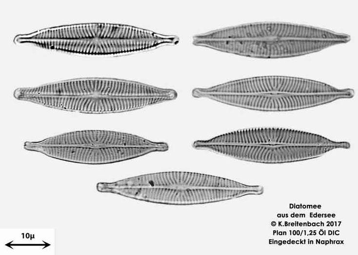Bild 10 Diatomeen aus dem Edersee, verschiedene Aufnahmen, Art: vermutlich Navicula spec.