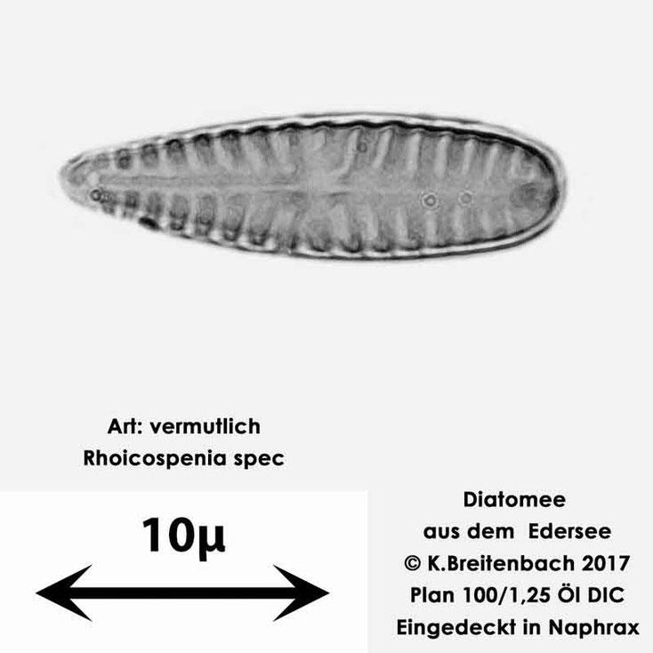 Bild 17 Diatomeen aus dem Edersee, Art: vermutlich Rhoicospenia spec.
