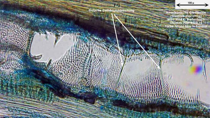 Bild 10 Tangentialschnitt von Ast der Amerikanischen Gleditschie  (Gleditsia triacanthos) gefärbt mit Etzold blau, eingebettet in Euparal