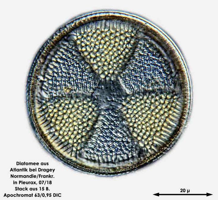 Bild 2 Diatomee aus dem Atlantik bei Draghey de Monton (Normandie). Art: Actinoptychus senarius (Ehrenberg) Ehrenberg 1843