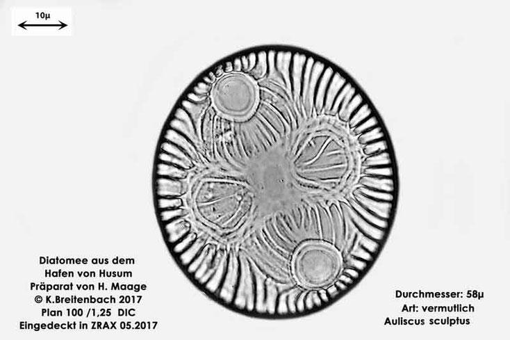 Bild 4 Diatomee aus dem Hafen von Husum Art: Auliscus sculptus (W.Smith) Brightwell