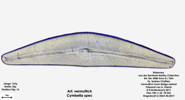 Bild 5a Diatomee aus Toomebridge Irland, Süßwasser Art: vermutlich Cymbella spec.