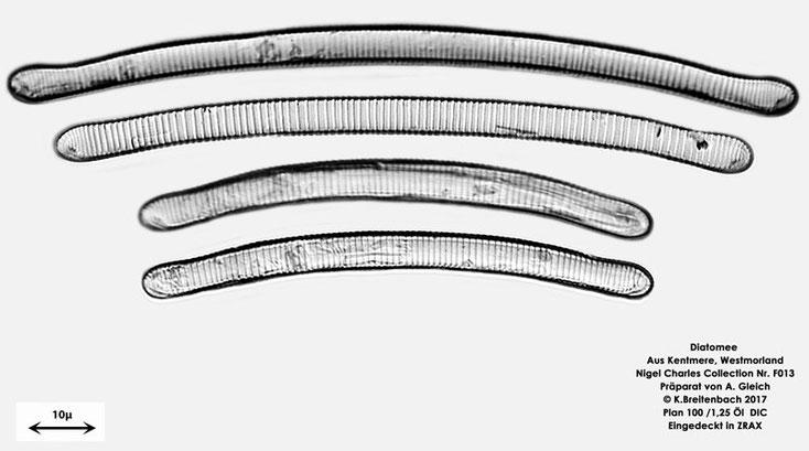 Bild 4 Diatomeen aus Kentmere Westmoreland UK Art: vermutlich Eunotia bilunaris (Ehrenberg) Schaarschmidt