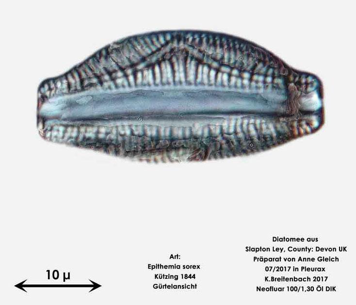 Bild 23 Diatomeen aus Slapton Ley, Devon UK; Art: Epithemia sorex Kützing 1844, Gürtelansicht