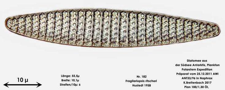 Bild 18 Diatomee aus dem anarktischen Ozean Präparat: ANT33/96; Art: Fragilariopsis ritscheri  Hustedt 1958