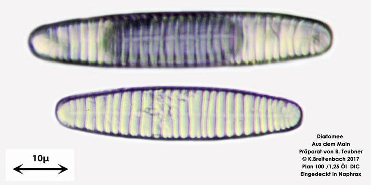 Bild 6 Diatomeen aus dem Main km 69,4 Art: vermutlich Diatoma spec.