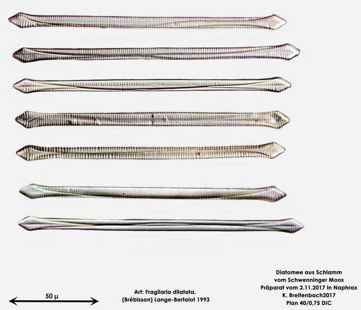 Bild 10 Diatomeen aus dem Schwenninger-Moos Art: Fragilaria dilatata (Brébisson) Lange-Bertalot 1993, Zusammenstellung
