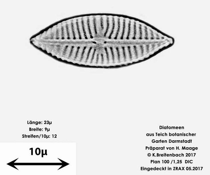 Bild 28 Diatomee aus dem botanischen Garten in Darmstadt, Gattung konnte von mir nicht bestimmt werden