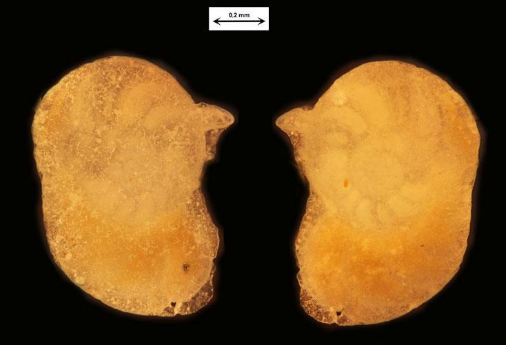 Okinawa/Japan, Foraminifere aus dem Sand vom Badestrand der Stadt Naha, Art unbekannt