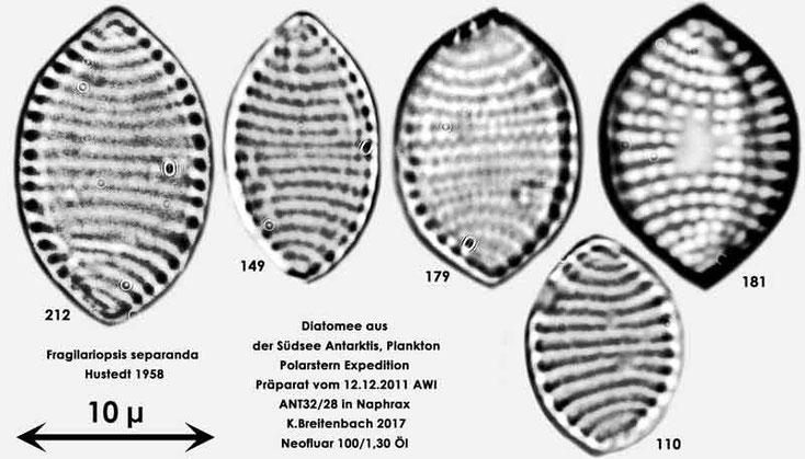 Bild 10 Diatomeen aus dem anarktischen Ozean Präparat: ANT32/28; Arten: Fragilariopsis separanda Hustedt 1958