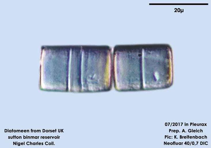 Bild 24 Diatomeen aus Dorset UK, Süßwasser. Art: unbestimmt