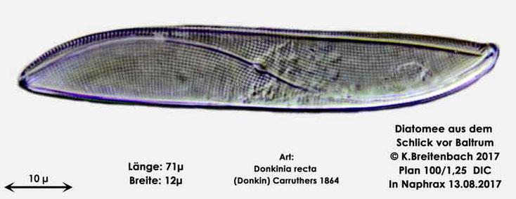 Bild 17 Diatomee aus dem Watt vor Baltrum; Art: Donkinia recta (Donkin) Carruthers 1864