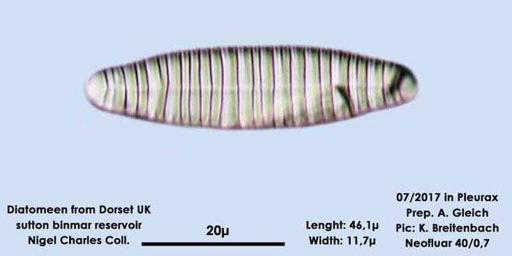 Bild 9 Diatomeen aus Dorset UK, Süßwasser. Art: Diatoma spec.