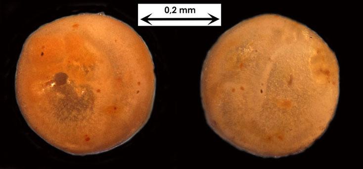 Foraminifere aus Waldlaubersheim vermutlich Globulina spec.