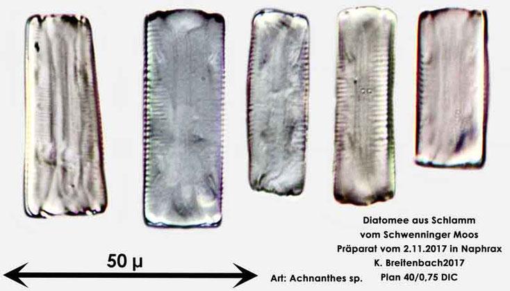 Bild 3 Diatomeen aus dem Schwenninger-Moos Gattung, Gürtelansicht von Achnanthes sp.