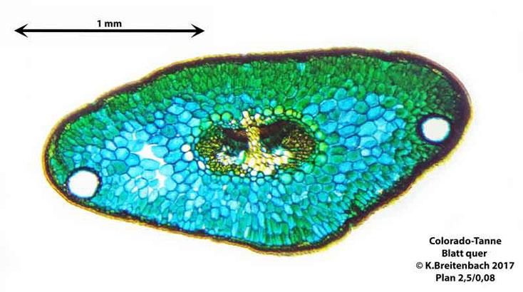 Coloradotanne (Abies concolor) Blatt im Querschnitt, im Hellfeld