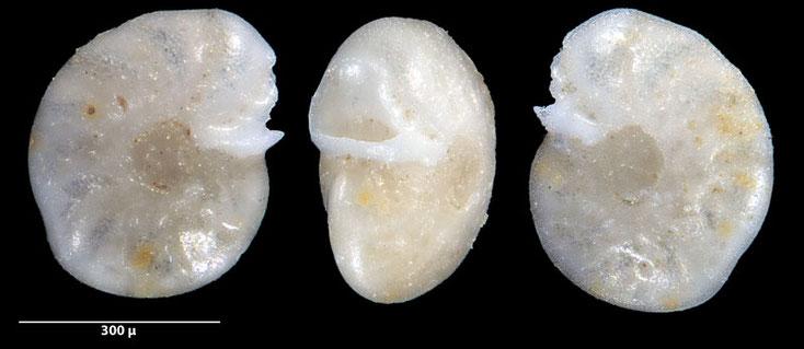 Bild 6 Foraminifere ausgelesen aus Sand von der Gaspesie, Kanada, Quebec