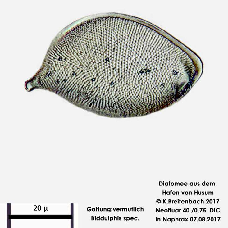 Bild 7 Diatomee aus dem Hafen von Husum Gattung: Biddulphia spec.