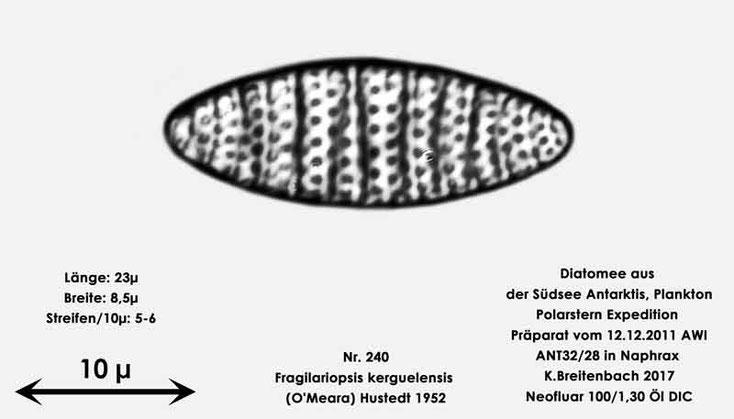 Bild 4 Diatomee aus dem anarktischen Ozean Präparat: ANT32/28; Art: Fragilariopsis kerguelensis (O'Meara) Hustedt 1952