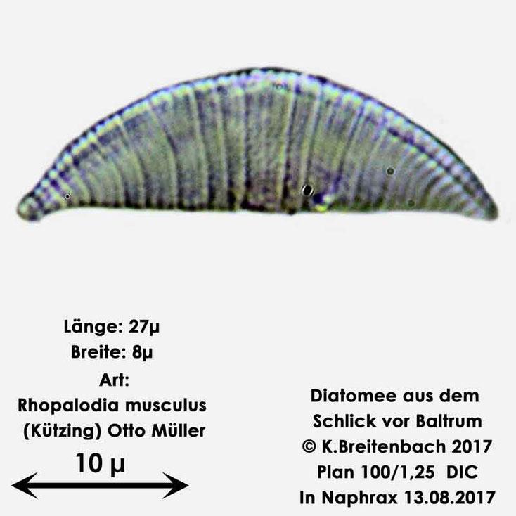 Bild 19 Diatomee aus dem Watt vor Baltrum; Art: Rhopalodia musculus (Kützing) Otto Müller