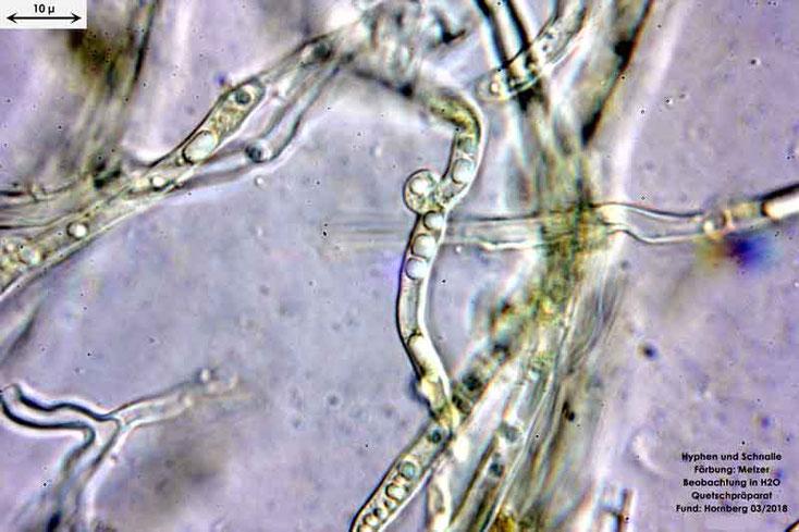 Bild 10 Hyhen mit Schnallen in Melzer von Cylindrobasidium evolens, Objektiv Neofluar 100Öl, Vergrößerung 1000fach,