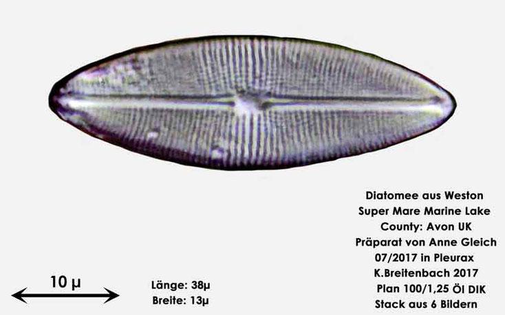 Bild 31 Diatomeen aus Weston Super Mare, UK Gattung: wurde von mir nicht bestimmt