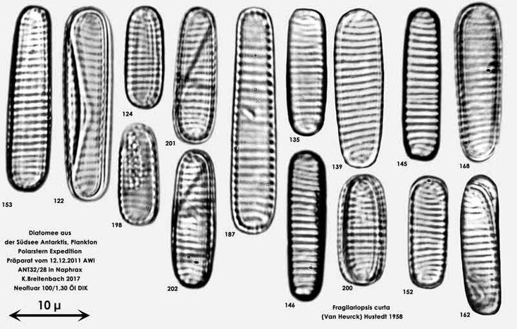 Bild 20 Diatomeen aus dem anarktischen Ozean Präparat: ANT32/28; Arten: Fragilariopsis curta (Van Heurck) Hustedt 1958