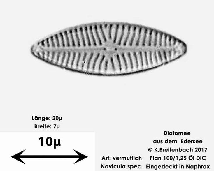 Bild 11 Diatomeen aus dem Edersee, Art: vermutlich Navicula spec.