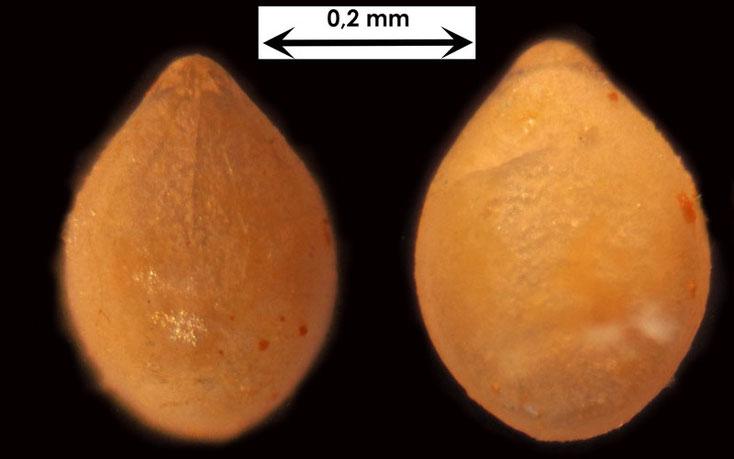 Foraminifere aus Waldlaubersheim vermutlich Glandulina spec.