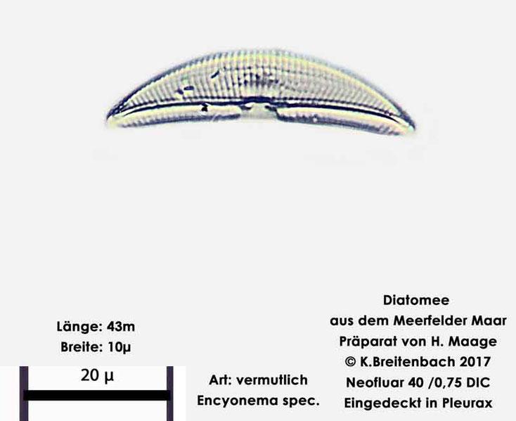 Bild 6 Diatomee aus dem Meerfelder Maar in der Eifel, Art: vermutlich Encyonema spec.