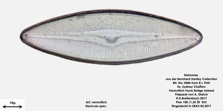 Bild 11 Diatomee aus Toomebridge Irland, Süßwasser Art: vermutlich Navicula spec.